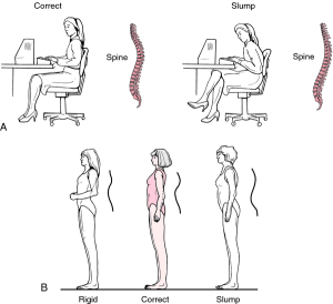 good posture the medical dictionary