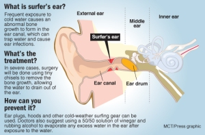 Cutaway of the human ear, explaining how it works; explosions and gunfire are reasons why soldiers are a high-risk group for hearing loss. The Gazette, Colorado Springs With BC-SCI-HEARINGLOSS:GT, The Gazette, Colorado Springs 07000000; HTH; krtcampus campus; krthealth health; krtnational national; MED; krt; mctgraphic; 07009000; HEA; injury; krtdiversity diversity; youth; amplfy; canal; cochlea; cochlear; ear; eardrum; estachian; external; hair; hear; inner; hearing loss; hearingloss; newsome; middle; ossicles; pinna; sound; trauma; tube; tympanic; gt contributed; 2009; krt2009